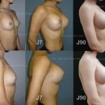 chirurgie esthetique avant apres prothèses mammaires