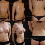 Liposuccion augmentation mammaire