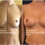 implants mammaires naturel avant après dual plan