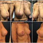 Changement de prothèses mammaires rétro musculaires avec dual plan et cure de ptose mammaire lifting du sein avant après