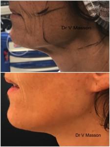 résultat d'un mini lifting du visage et du cou avec plicature du smas