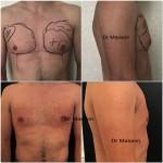 Cure de gynécomastie par liposuccion et round block