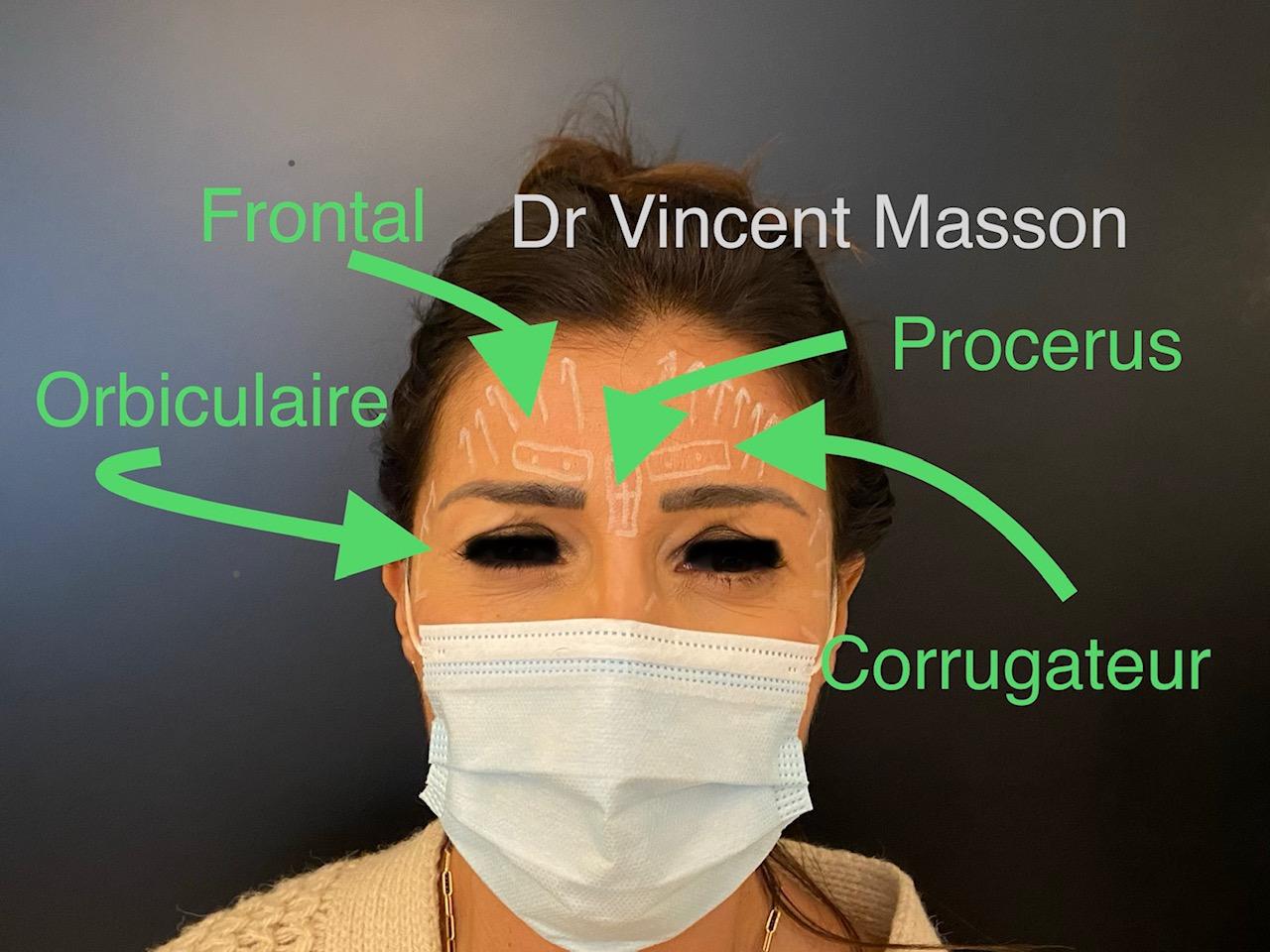 Injections de Botox au niveau du visage dans les muscles orbiculaires, corrugateurs, procerus et frontal.