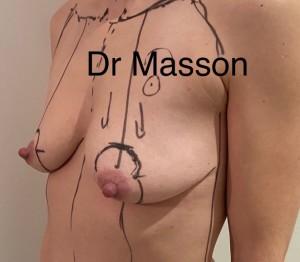 Effacer cicatrice laser seins, Docteur Masson Paris