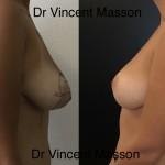 Cure de ptose mammaire naturelle sans prothèse avec cicatrices de lifting en T