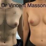 Augmentation mammaire pour correction de seins tubéreux avec malformation avant après dr Vincent Masson, profil modéré