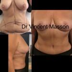 Mommy tuck make over ou association d'une plastie mammaire de réduction et d'une abdominoplastie à haute tension supérieure avec cure de diastasis après grossesse, avant après