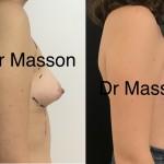 Correction de seins tubéreux avant après Dr Vincent Masson par mise en place de prothèses mammaires