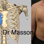 syndrome de Poland par agénésie du muscle pectoral traitée par prothèse sur mesure en silicone