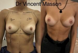 augmentation mammaire cicatrice sous mammaire dual plan 270 300 ml avant après dr vincent masson prothèses de profil modéré rondes cicatrice sous le sein, volume de 300 ml, bonnet C naturel