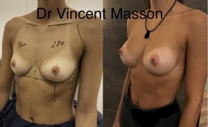 Avant après augmentation mammaire par prothèses dr masson vincent dual plan cicatrice sous mammaire bonnet c 270 300 ml