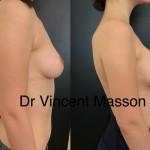Augmentation mammaire avant après prothèses mammaires Dr Masson aspect en poire du décolleté grâce au dual plan volume 320 cc