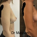 Augmentation mammaire avant après prothèses rondes de haut profil en dual plan volume 350 cc