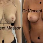 résultat augmentation mammaire avant après cicatrice sous mammaire dual plan haut profil 350 cc