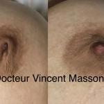 correction de mamelon invaginé par cicatrice au niveau du mamelon ou téton et lambeau sous mamelon dr vincent masson