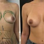 Augmentation mammaire composite Dr Vincent Masson prothèses mammaires dual plan de 350 ml et lipofilling