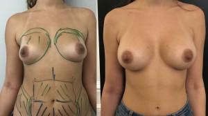 Augmentation mammaire composite Dr Vincent Masson prothèses mammaires et lipofilling