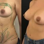 Augmentation mammaire et lipofilling mammaire pour augmentation mammaire composite avec injection de graisse dans la partie haute des seins Dr Masson