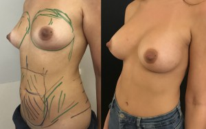 Augmentation mammaire et lipofilling mammaire Dr Masson