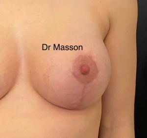Résultat traitement cicatrice à 3 mois cure de ptose mammaire