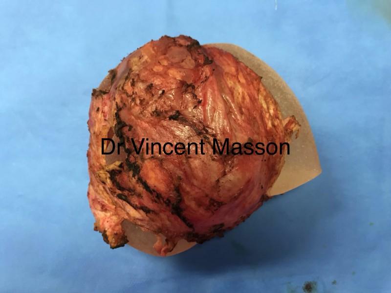 Capsulectomie sur coque baker 4 autour d'une prothèse mammaire
