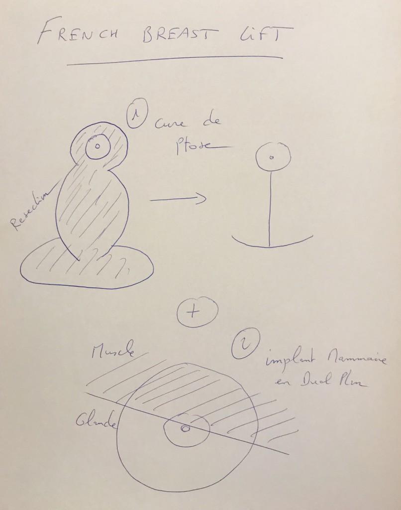 prothèse mammaire dual plan et cure de pose pour lifting du sein