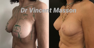 cure de ptose avec mastopexie cicatrices en T et implants mammaires dual plan  selon technique du FBL French Breast Lift bonnet c