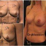 Augmentation mammaire naturelle à paris par le Dr Masson avec implants mammaires en silicone