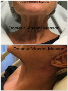 Lifting du cou soft lifting résultat immédiat ovale visage naturel