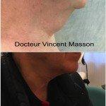 lifting cervical du cou chez l'homme