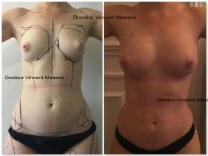 Liposuccion pour transfert de graisse ou lipofilling avec augmentation mammaire