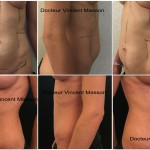 Mommy makeover par abdominoplasties Paris et implants mammaires naturels