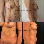 Mommy make over après grossesse lifting du ventre et cure de prose pour remonter les seins vidées