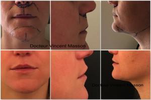 Profiloplastie par lifting lèvre supérieure lip lift et plastie modelante du menton