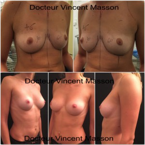 Augmentation mammaire Dual plan naturelle