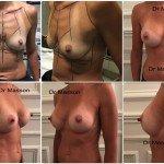 Cicatrice sous mammaire pour augmentation mammaire