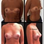 Cure de seins tubéreux par prothèses mammaires et plastie aréolaire Dr Masson Paris