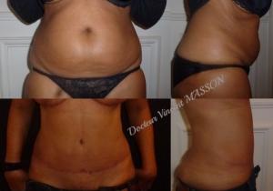 Résultat à 3 mois d'une plastie abdominale avec lifting du ventre selon une technique haute tension supérieure afin de simplifier les suites opératoires, lipoaspiration de la graisse en excès sur le ventre et les flancs.