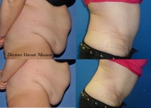 Plastie abdominale avec transposition de l'ombilic et lipoaspiration de l'abdomen prise en partie en charge par l'assurance maladie. Liposuccion de 5 litres.