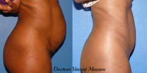 Cure de diastasis des muscles grands droits de l'abdomen après grossesses multiples par voie d'abdominoplastie esthétique. Résultat à 1 an de l'opération. Prix et tarif dans la rubrique spécifique.