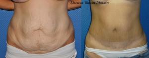 Abdominoplastie par lifting du ventre ou plastie abdominale