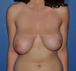 Asymétrie mammaire de volume et de forme