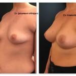 prothèses mammaires avant après