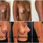 Prothèses mammaires 300 cc profil modéré naturel avant après dual plan