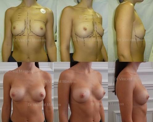 chirurgie esthétique des seins Dr Vincent Masson