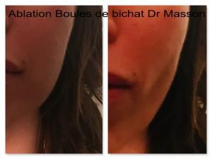 Ablation de la boule de bichat (bichectomie) avant après