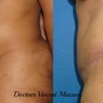Cure de diastasis et plastie abdominale avec liposuccion sur peau noire, résultat avant après