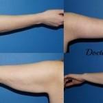 Lifting des bras technique de cicatrice longitudinale et axillaire et liposuccion associée du bras, avant après brachioplastie