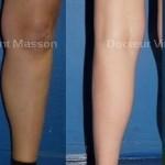 Prothèses de mollet en silicone, cicatrice au niveau du creux poplité, résultat avant après de l'implant de mollet