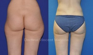 Liposuccion culotte de cheval (lipoaspiration des hanches)